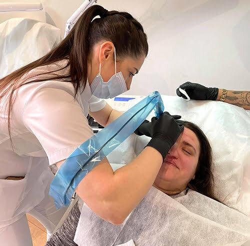 Zabieg ScarINK w Estemmi Beauty Center